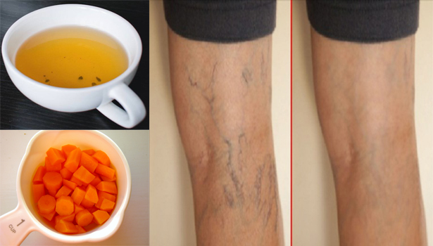 2ts1RE6 How To Permanently Remove Your Varicose Veins Using Carrots
