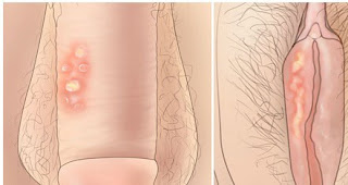 Obat bibir miss v gatal perih mengelupas karena sipilis