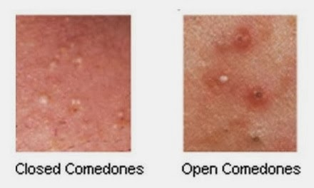 Comedonal Acne - Causes, Symptoms and Treatment White Comedone