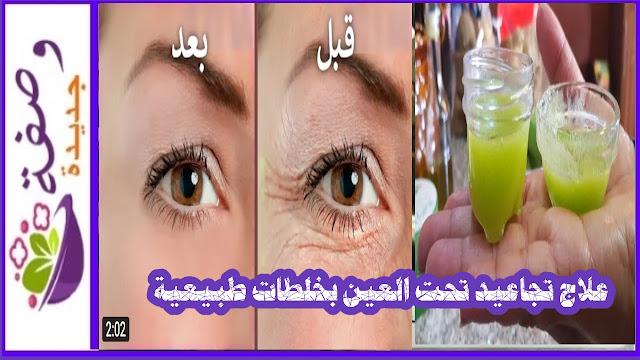 علاج تجاعيد العين في سن صغير،بديل علاج تجاعيد تحت العين بالليزر،علاج تجاعيد العين بالاعشاب،كيفية علاج تجاعيد تحت العين،كريم علاج تجاعيد تحت العين،علاج تجاعيد تحت العين للرجال،علاج تجاعيد و انتفاخ تحت العين، علاج تجاعيد تحت العين و و الهالات السوداء،طريقة علاج التجاعيد حول العينين،علاج فعال للتجاعيد تحت العينين
