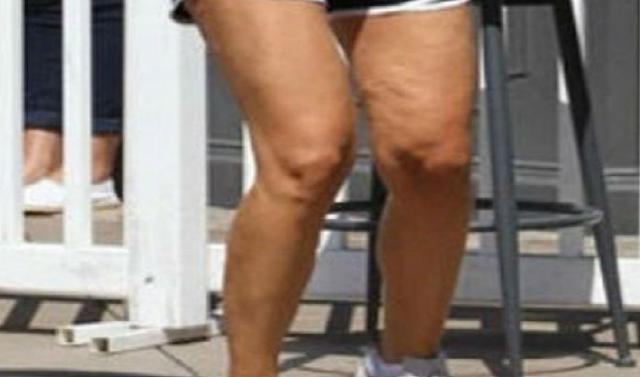 Αυτά τα γεμάτα κυτταρίτιδα πόδια ανήκουν σε πασίγνωστη Ελληνίδα παρουσιάστρια! Για ποια πρόκειται;