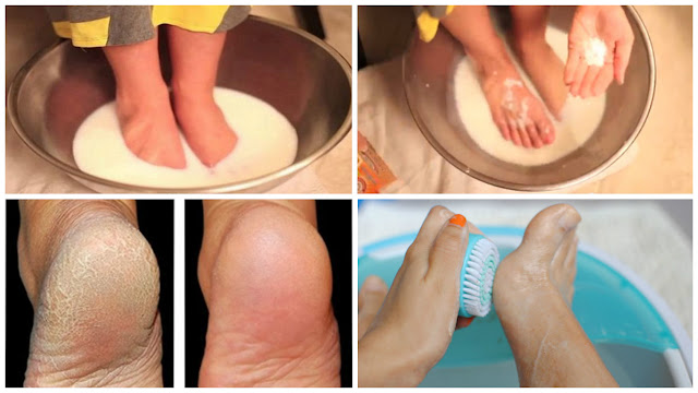 Don't Spend Your Money On Pedicure: Use Two Ingredient From Your Kitchen And Make Your Feet Look Nice