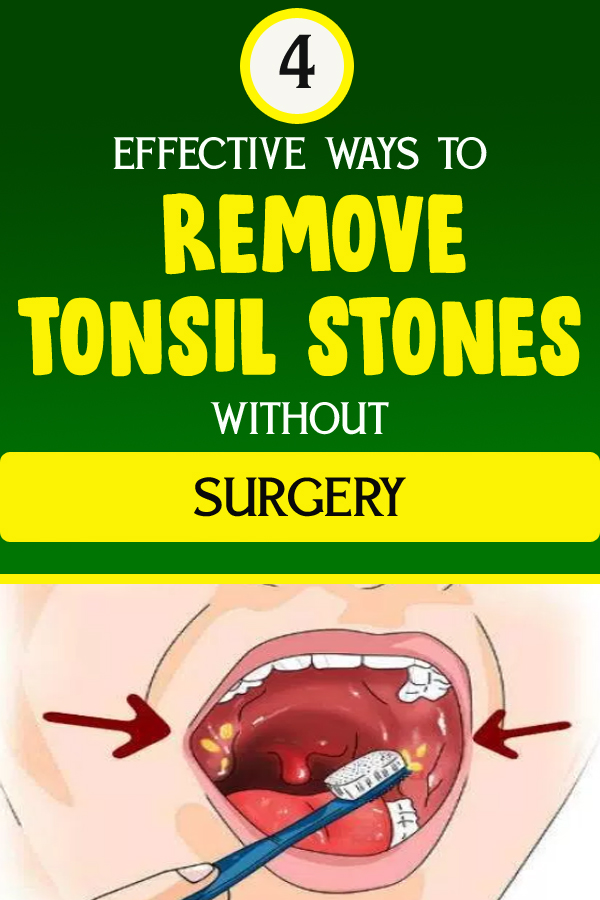 4 EFFECTIVE WAYS TO REMOVE TONSIL STONES WITHOUT SURGERY