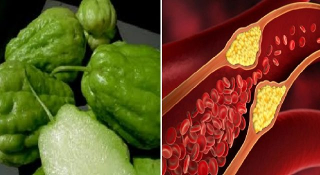 Belum Banyak Yang Tahu, Nyatanya Labu Siam Bagus Untuk Menurunkan Kolesterol Tanpa Efek Samping & Lebih Ampuh Dari Obat Kimia!