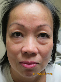 Micro Laser Peel With Erbium Laser Before And After