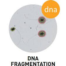 Contoh kelainan bentuk kepala sperma akibat fragmentasi DNA sperma