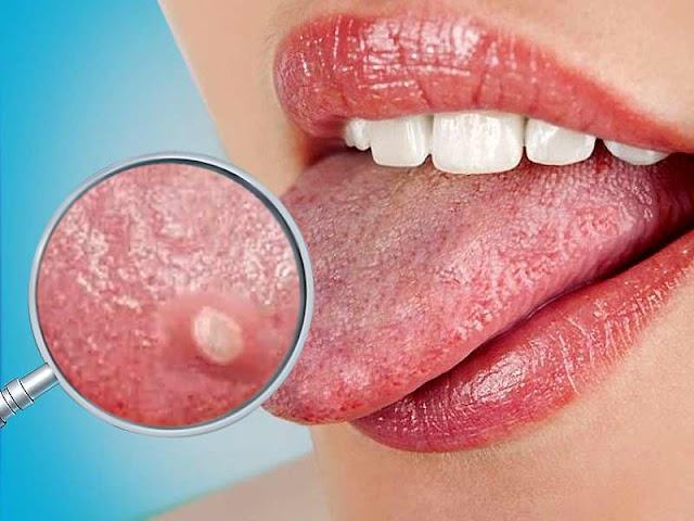 Overcome Intense Burning Blisters On Tongue