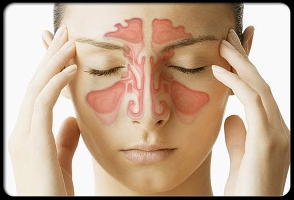SALUD: La rinitis alérgica se controla pero no se cura.