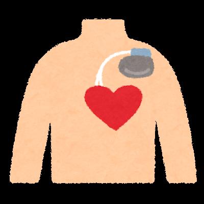 ペースメーカーと心臓のイラスト