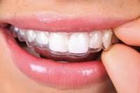 townson braces