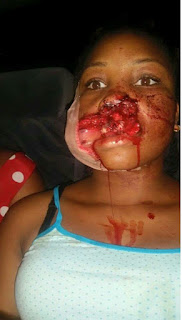 Girl Shot in the Mouth by Gunmen
