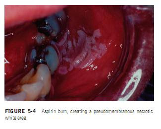 Burket's Oral Medicine: Chemical Injuries of the Oral Mucosa