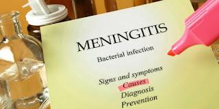 Kenali Apa Itu Meningitis, Penyebab, serta Gejala yang Muncul