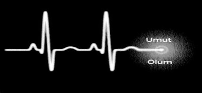 Kalp Ritim Çizgisi