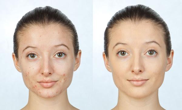 Wajah Sebelum dan Setelah Pengobatan Jerawat Muka Bebas Jerawatan