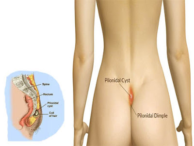 GET GOOD PILONIDAL CYST HOME REMEDIE