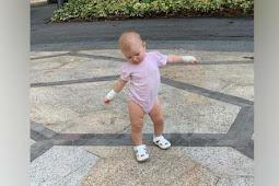 Tangan Olivia Luna, Anak Marissa Nasution Terbakar Akibat Cuaca Ekstrem