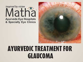 Ayurvedic Treatment for Glaucoma