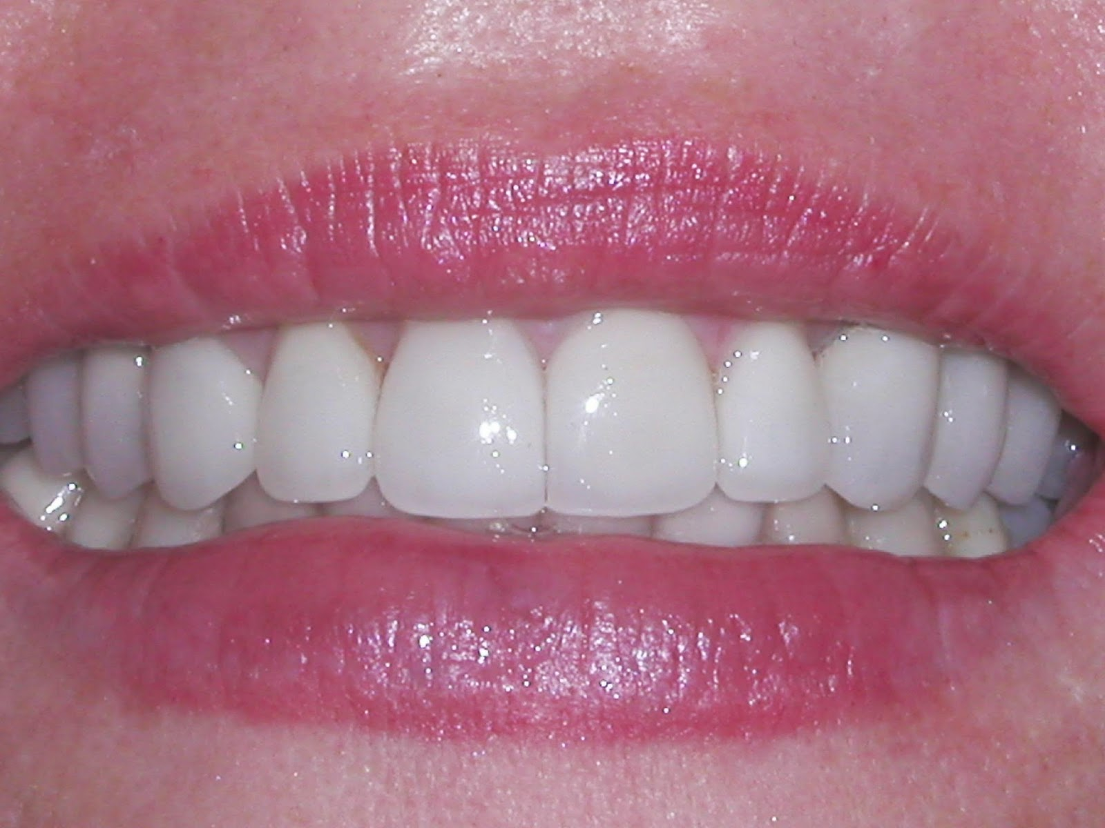 South Bay Dentistry uses biocompatible over amalgam fillings