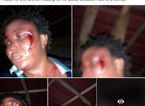 Man who beat wife, boasted on Facebook, admitted to N500,000 bail