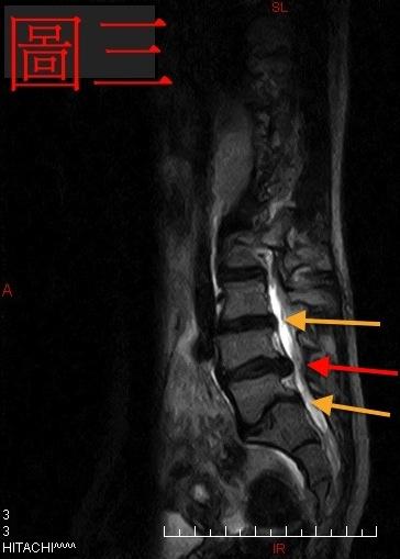 脊椎側彎檢查, 椎間盤突出, 脊椎側彎治療