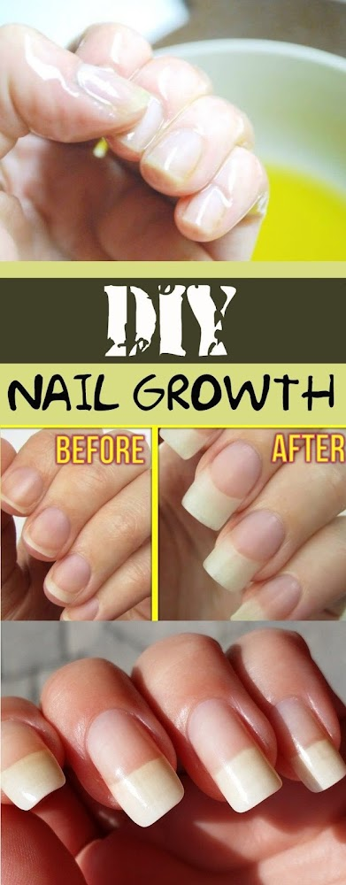 Best Home Remedies for Nail Growth