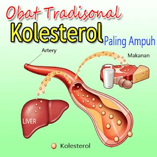cara-menurunkan-kolesterol-alami
