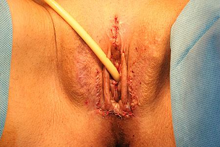 Хирургическая операция на влагалище порно видео