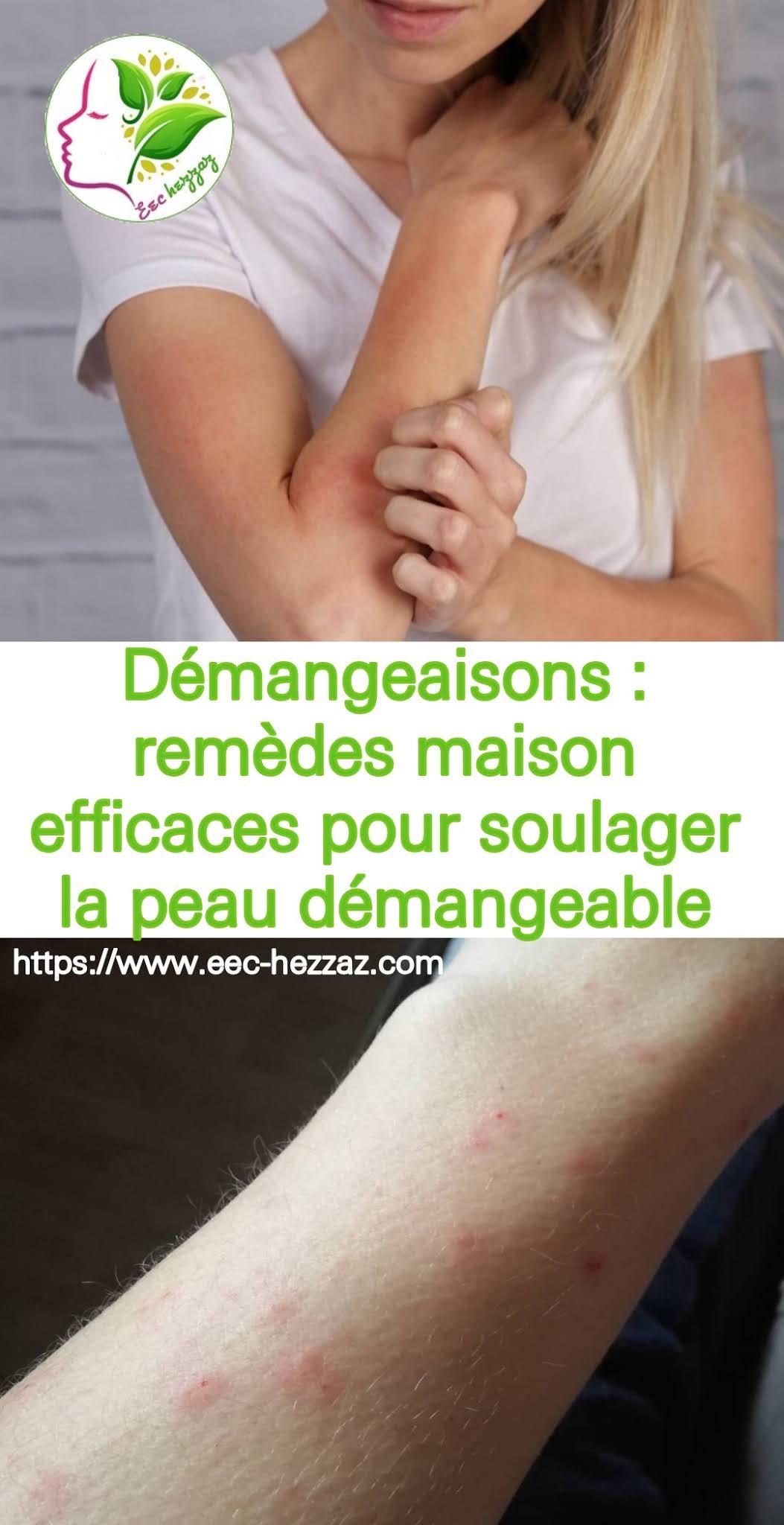Démangeaisons : remèdes maison efficaces pour soulager la peau démangeable