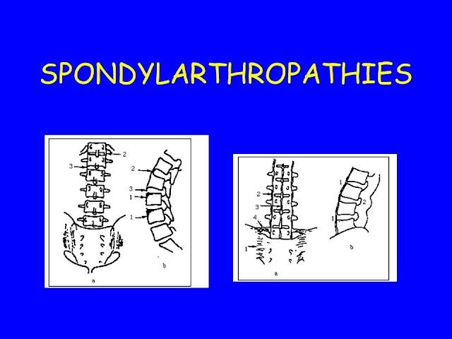 SPONDYLARTHROPATHIES .pdf