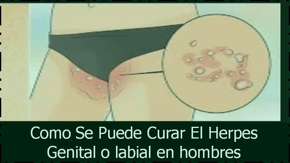 Como Se Puede Curar El Herpes Genital o Labial En Hombres