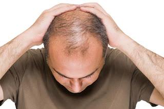 تقنيات جديدة لعلاج تساقط الشعر فورا
