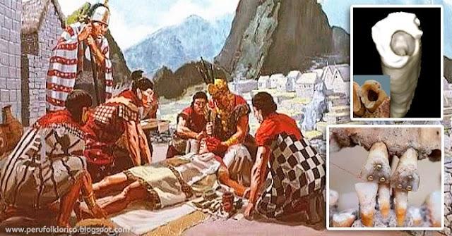 Los odontólogos de la época inca y sus métodos de curación y extracción dental