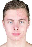 Argan Oil Help With Acne