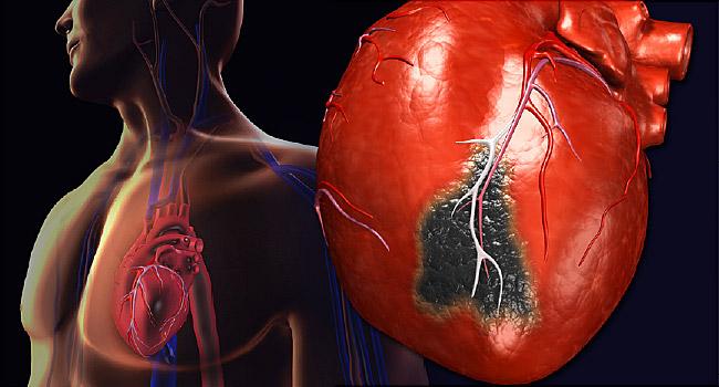 gejala-gejala sat sebelum serangan jantung yang wajib anda ketahui