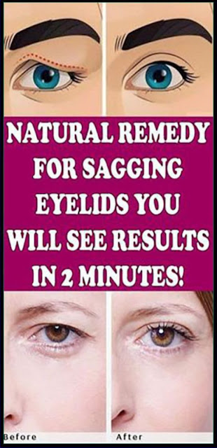 Natural Remedy For Sagging Eyelids You Will See Results In 2 Minutes