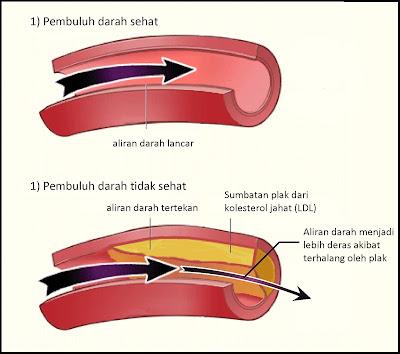 Obat Penyumbatan Pembuluh Darah Otak / Jantung Alami