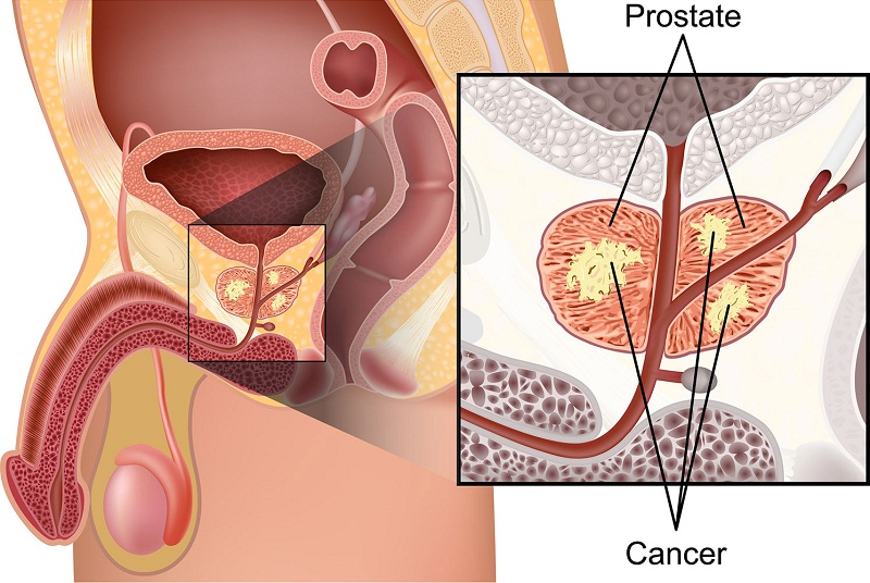 Mengatasi Penyakit Prostat Dengan Nutrisi