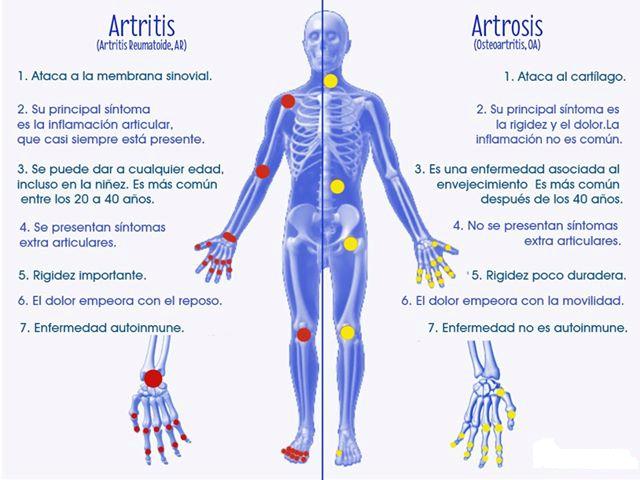 2018 ultimos avances linear unit artrosis de columna