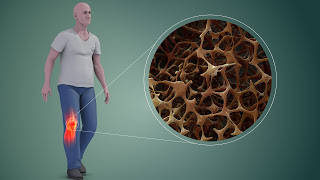 Imagen que representa la osteoporosis