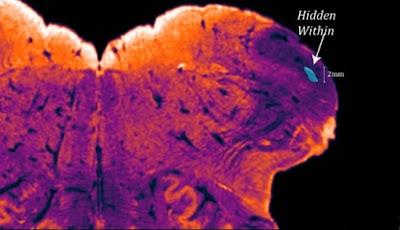 Wilayah Tersembunyi Otak Manusia Ditemukan, Apa Fungsinya?