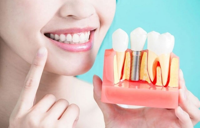 all about implant dentistry information dental implants