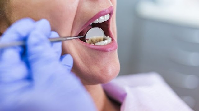 Root canal treatment (RCT)
