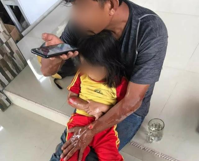 Hindari Kambing di Jalan Raya, Pengendara Asal Sinjai Timur Terjatuh Alami Luka-luka
