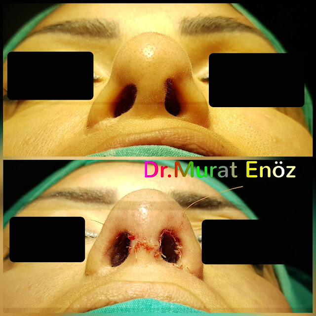 Tertiary Revision Nose Tip Plasty, 3rd Revision Nose Tip Correction Surgery in Istanbul