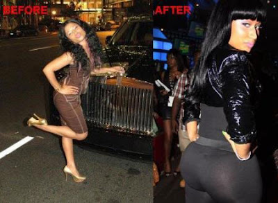 Nicki Bettwäsche Real Nicki Minaj Before And After Plastic Surgery - Welcome To ...