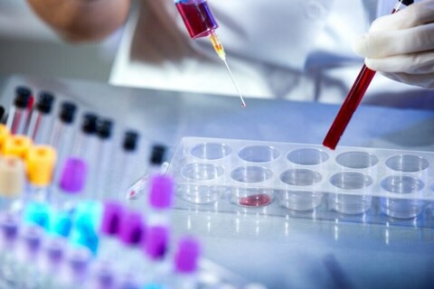 Prefeitura da Capital vai comprar 10 mil kits de exames para Coronavírus