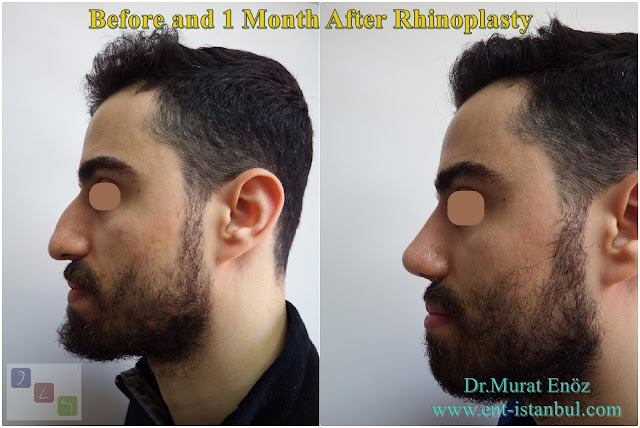 Rhinoplasty For Men Istanbul,crooked nose job,Asymmetric nose operation,Micro-Motor Assisted Rhinoplasty Operation Istanbul,Twisted Nose Aesthetic,