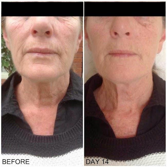Live It Do It Real Mum Review Newa Skin Rejuvenation