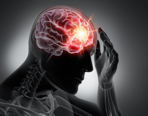 Physiotherapy treatment brain injury